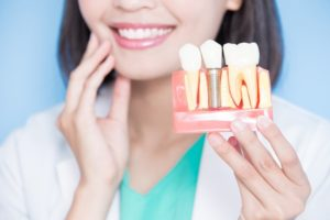 smiling dentist holds model jaw with dental implants in San Marcos