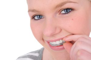 Invisalign in San Marcos is the perfect alternative to traditional braces.